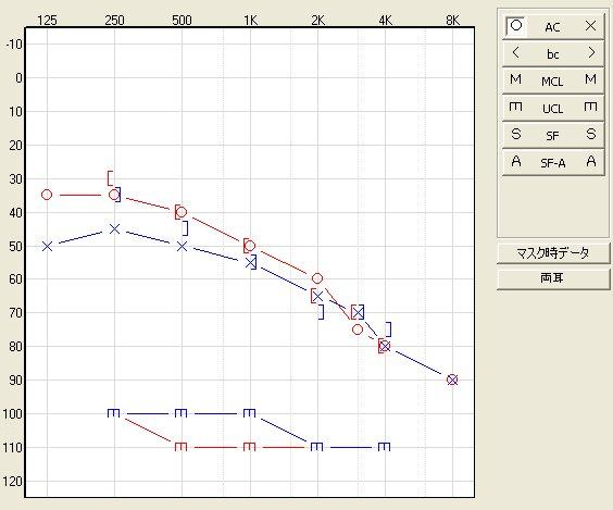 オーディオグラム測定例