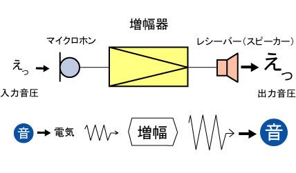 アナログ補聴器(従来補聴器)